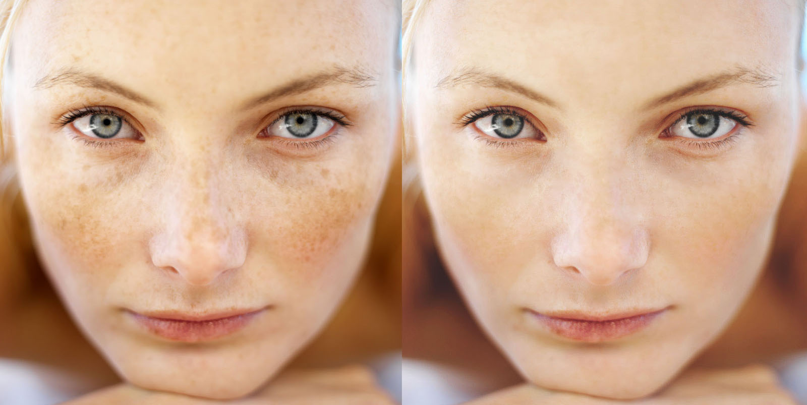 Freckles treatment options