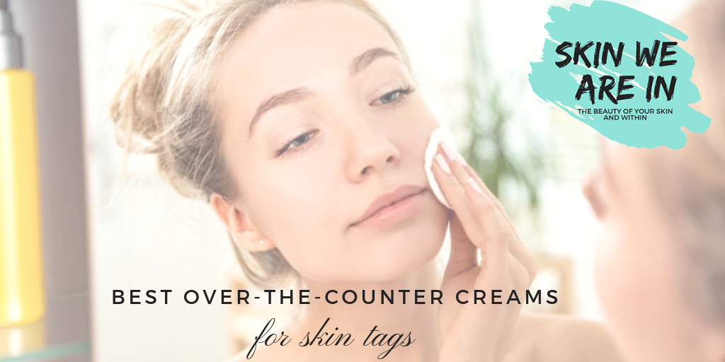 Over the Counter Skin Tag Removal Cream