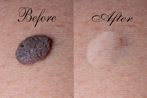 Moles: Before and After Removal