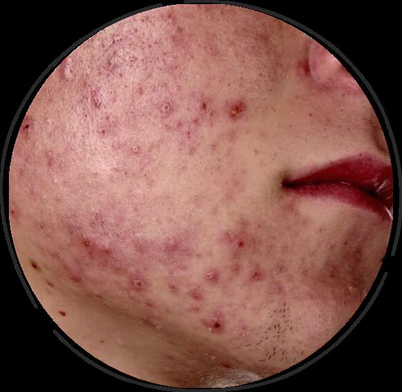 Men acne