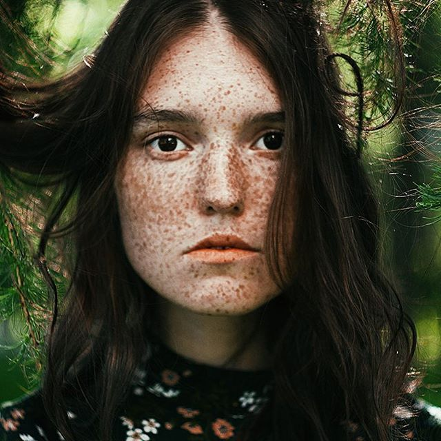Freckles are sign of beauty