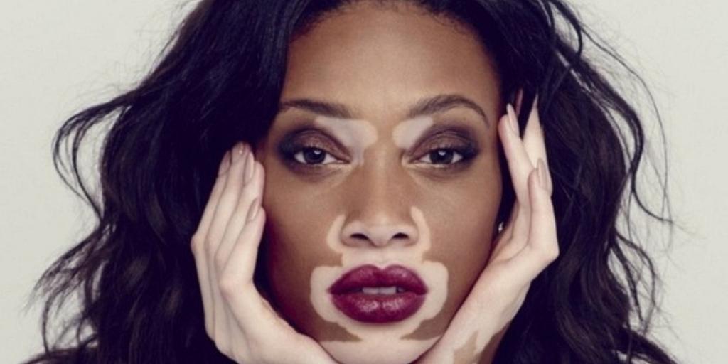What Causes Vitiligo