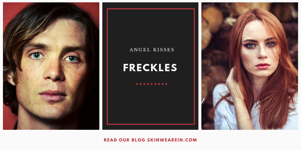 People with Freckles