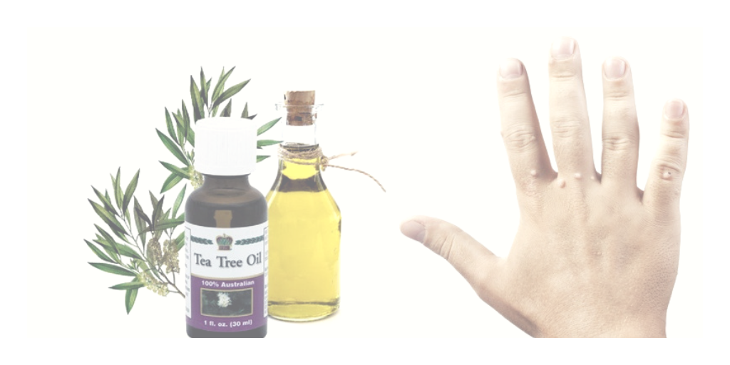 Teav Tree Oil for Skin Tags