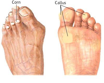 Feet Corn and Feet Callus