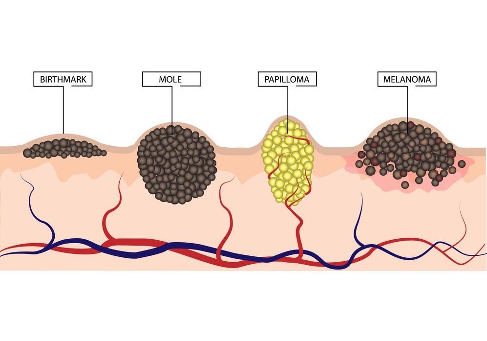 Birthmark - mole - papilloma - melanoma