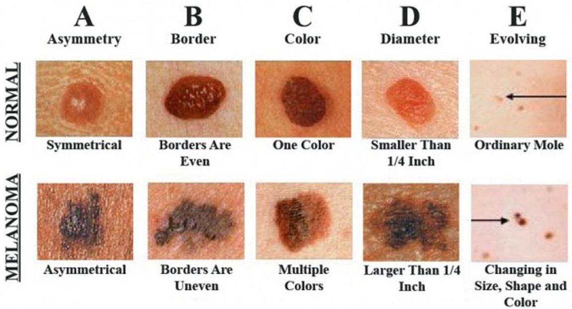 Melanoma ABCDE rule