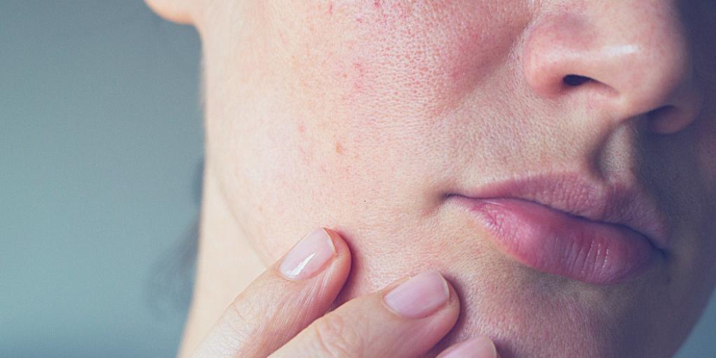 Moisturizers for sensitive skin
