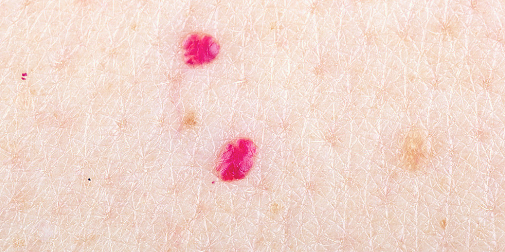 Cherry Angioma: Red Dots on Skin