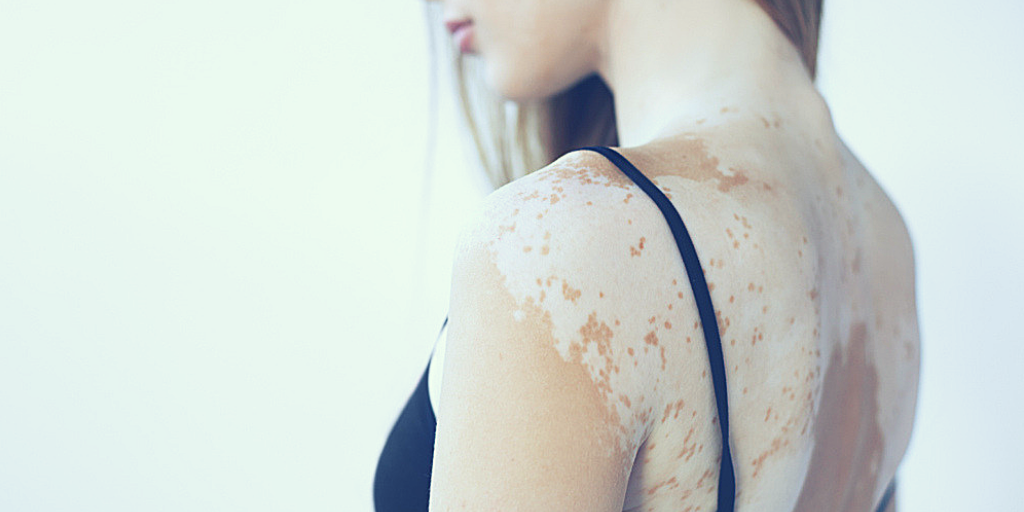 Vitiligo: How to Get Rid of White Patches on Skin?